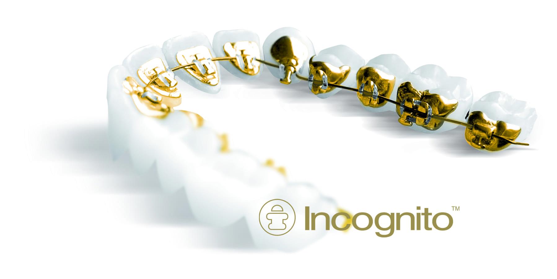 3M Incognito