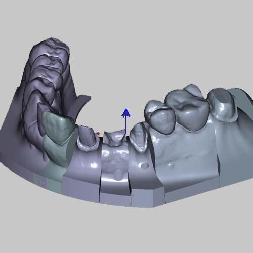専用ソフトで処理後の口腔内データ