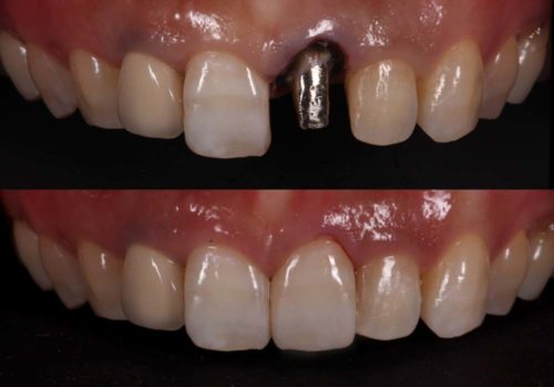 Zirconia Crown on Metal Core