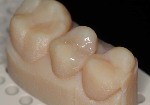 Zirconia Inlay on 3D printed model