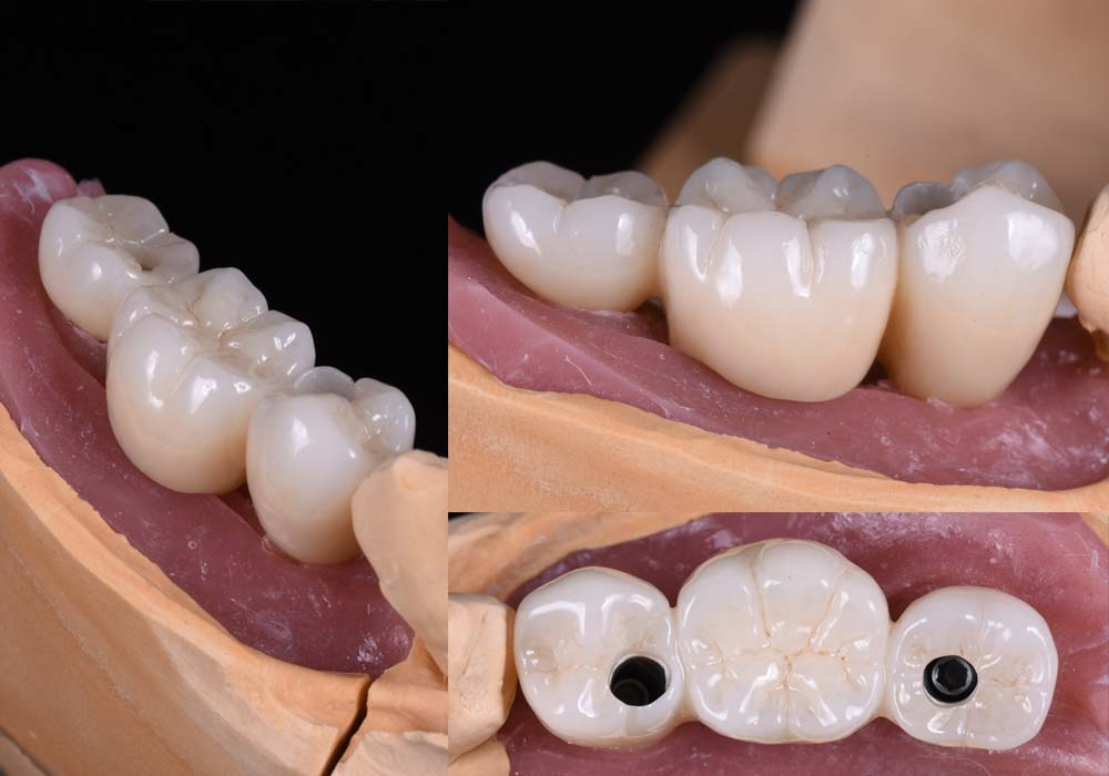 implant 3unit bridge