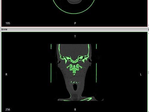 CTデータから造形部を選択
