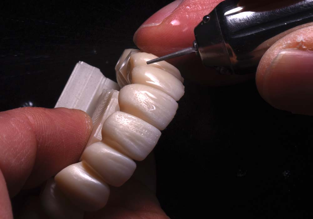 Zirconia Adjusting